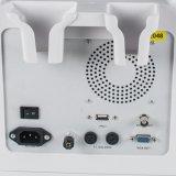 2017 heißer Verkaufs-voll Digital-beweglicher Tierarzt-Ultraschall-Scanner ohne Fühler (80 Element) - Alisa