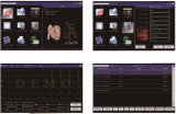 Bk-ECG6 6 Machine van de Elektrocardiograaf van Kanalen de Digitale