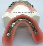 Implant Gebit voor Kliniek van Chinees TandLaboratorium