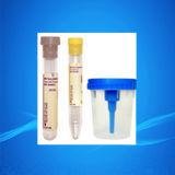 Contenitore dell'urina/tazze delle tazze/urina esemplare di urina