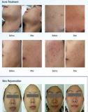 A melhor terapia de Health&Medical PDT/LED para a beleza de Hfdhealthmedical do cuidado de pele