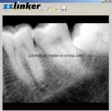 Si el sensor de rayos Lc-C64 Corea del Sur Yesbiotech Dental X RVG