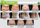 Cryolipolysis fette Verkleinerungs-Sicherheits-Karosserie, die medizinische Ausrüstung abnehmend umreißt