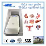Sistema portátil do ultra-som de WiFi da bateria interna para o abdômen/Msk/o vascular