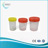 Spécimen d'échantillonnage de l'échantillon de selles tasse pour prélèvement urinaire