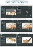 판매를 위한 Beco Gl3 안료 제거 & 여드름 처리 소형 산소 얼굴 기계