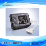 Portátil USB USG para Laptop / Palm Ultrasound Probe Scanner / Handheld USB Ultrasound Scanner