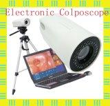 의학 Gynaecology 전자 휴대용 디지털 Colposcope 가격
