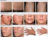 Multifunzionale sceglie la macchina di rimozione dei capelli del tatuaggio di ringiovanimento della pelle di rf Elight