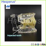 Modelo patológico dental Hesperus del injerto de los dientes de los dientes del injerto dental