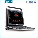 Scanner numérique complète l'échographie 3D 4D DOPPLER COULEUR Sonoscape S9 pro