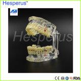 Modèle pathologique dentaire d'implant de dents de dents d'implant dentaire