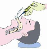 Vie respiratorie laringee mediche a gettare della mascherina con l'alta qualità