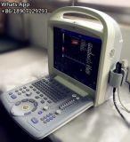 低価格の頚部容器のための手持ち型の超音波カラードップラー
