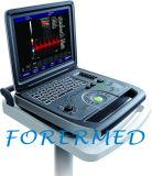 Le diagnostic de l'équipement Portabel Doppler couleur 3D/4D scanner à ultrasons