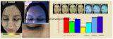 Analisador da pele/análise Machince da pele e do cabelo para a venda