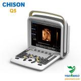 Ultrasone klank van Doppler Chison van de Kleur van het ziekenhuis de Medische Draagbare 4D Q5