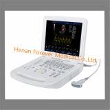 Aprovado pela CE Equipamento Médico scanner de ultra-som portátil digital (YJ-U200)