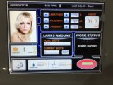 Dioden-Laser des Haar-Abbau-Geräten-810nm