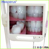 17pulgadas de alta definición Dental endoscópica de la Cámara Intraoral controlar una máquina con cámara Sony y con soporte gratis Asin Hesperus
