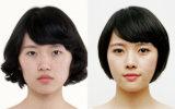 Relleno Dermico Hialuronico Acido Inyectable para la Belleza