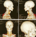 Пэт медицинское рентгеновское сухой голубой и белый цвета пленки для больницы