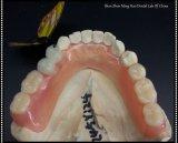 Denture flexible partielle avec la dent acrylique faite dans le laboratoire dentaire de Minghao