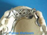 Cobalto y cromo parciales con las conexiones preciosas hechas en el laboratorio dental de China