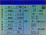 Vcv de Machine van de Anesthesie met Vertoning 5.7inch TFT voor Volwassene en Kind