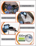 Usmsu3 Ultrasone Kenmerkende Scanner met de Functie van de Spaarder van het Scherm