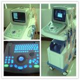 "Portable 10 "" LED Color 디지털 가득 차있는 초음파 System 산과 검사를 위해"