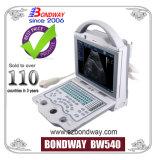 초음파 태아 검사, 임신 초음파 기계, 디지털 휴대용 초음파 스캐너 (BW540), 초음파