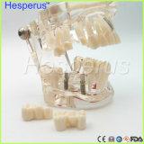 Mode de dents de carie de simulation de bride de démonstration d'implant dentaire
