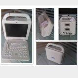 Блок развертки ультразвука цифров медицинского инструмента портативный полный с зондом