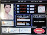Laser-schmerzloser Haar-Abbau-Maschinen-Laser der Berufsdioden-808nm
