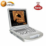4D Van de Scanner van de Ultrasone klank van Doppler Draagbaar Ce- Certificaat