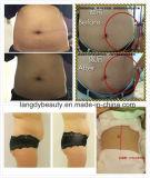 Горячее сбывание! ! ! Тело потери веса Slimming машина Ultrashape от Китая