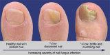 Dispositif inférieur de thérapie de laser pour l'infection de mycète de tep de doigts