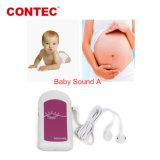 Un Doppler Fetal Contec Babysound Detecor de 20 años de fabricación China