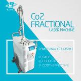 Hohe Leistung Bruch-CO2 Laser-Gynäkologiecosmetology-vaginales festziehengerät mit medizinischem Cer