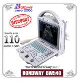 Ultra-som 4D, o que é o preço para o 4D ultra-sonografia, ultra-som portátil digital completo (PN540)
