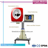 Eben konzipierte bewegliche Haut-Kamera für das Haut-Prüfung und Analysieren mit Cer-Zustimmung
