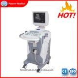 Chariot du scanner à ultrasons Echographie Full-Digital matériel hospitalier