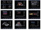 Ultraschall-Diagnosen-Systems-Farbe Doppler (AM-380)