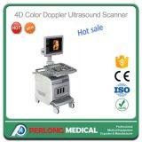 L'échographie Doppler couleur 4D Le système de diagnostic