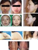 Remoção de pêlos IPL Elight Máquina de rejuvenescimento da pele