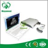 My-A010 Ultrasound B Scanner Box Ultrasound Accessory (mit Darstellung 3D, ultrasond, schwarzem Weiß, Scanner)