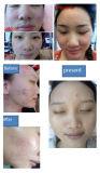 顔のスキンケアのための実用的な多機能水酸素のジェット機の皮