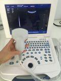 2018 i più nuovi scanner Pieno-Digitali di ultrasuono del computer portatile/trasduttore di ultrasuono con il sistema operativo conveniente Mslpu09
