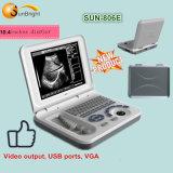 Sun-806e горячая продажа ультразвукового сканирования оборудования больницы Portable/Laptop ультразвукового аппарата